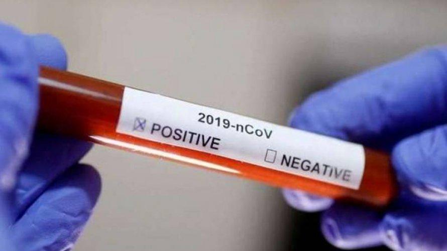 Brasil registra 201 mortes por coronavírus nesta terça-feira (31)