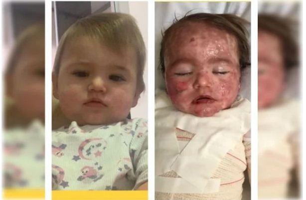Imagens fortes: reação alérgica faz bebê ficar com rosto desfigurado; família pede ajuda